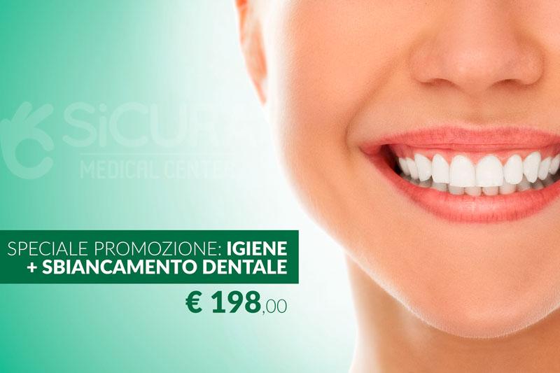 Igiene dentale + Sbiancamento a 299 euro