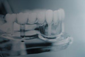 Impianti dentali: cosa sono, dove farli, quanto costano